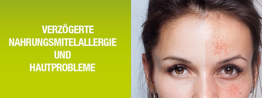 Verzögerte Nahrungsmittel- Allergien und Hautprobleme